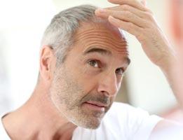 Understanding Of Hair Loss